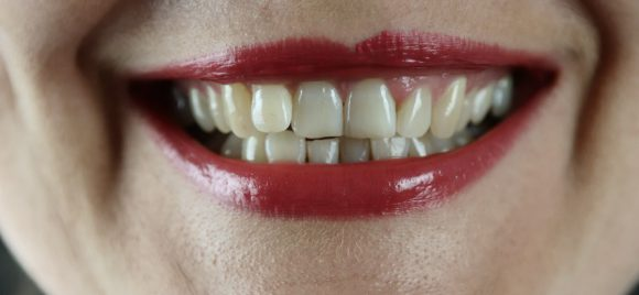 Home-Remedies-for-Sensitive-Teeth